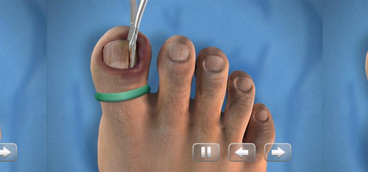 Ingegroeide nagel